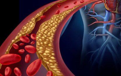 Alimentação versus Hipertrigliceridemia